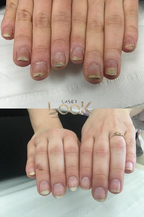 Grzybica przed i po leczeniu